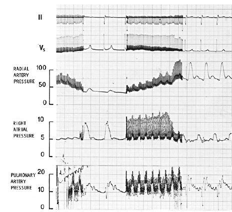 Úsek záznamu kontinuálního elektrokardiogramu (svody II a V5), tlaků v a. radialis, pravé síni a a. pulmonalis během celkové anestezie