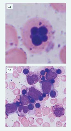 Mnohojaderný erytroblast u pacientky s CDA (3.1) Patologické multinukleární erytroblasty typické u pacientů s CDA IV (3.2)
