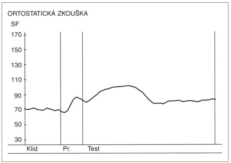 Změny srdeční frekvence (SF) v ortostatické zkoušce u zdravé osoby. Nad osou x – křivka zobrazující změny srdeční frekvence v ortostatické zkoušce. Výchozí kardioakcelerace následovaná kardiodecelerací vyvolanou vagem. Osa y – hodnoty srdeční tepové frekvence za minutu. Fig. 3. Heart rate changes during the orthostatic test in a healthy person.<br> Above the x-axis – curve depicting heart rate changes during the orthostatic test. Initial cardioacceleration followed by vagally induced cardiodeceleration. Y-axis – heart rate (beats per minute).