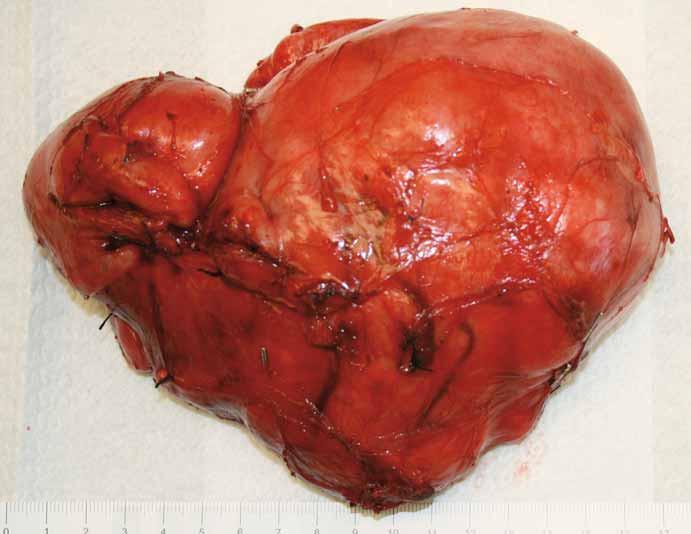 Stav po resekci tumoru se zachováním pravé ledviny, vena cava inferior byla v celém infrarenálním průběhu odpreparována od tumoru, byly přerušeny přímé spojky jdoucí z tumoru do zadní stěny dolní duté žíly a zresekována retroaortální porce nádoru.