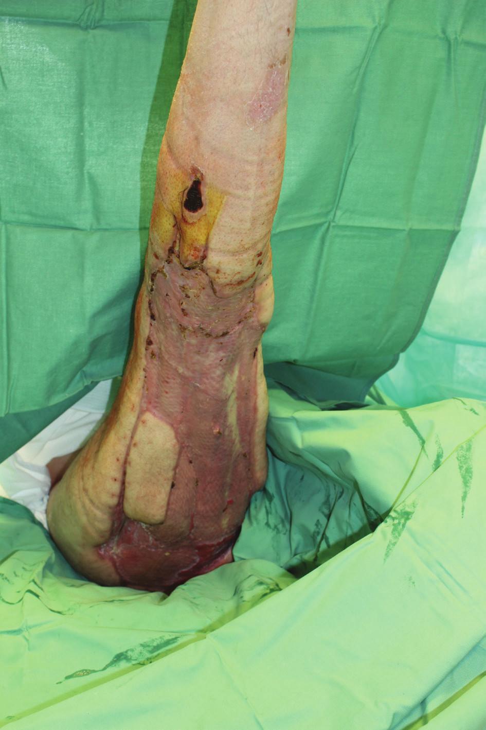 16. den po transplantaci, štěpy přihojeny, 2 malé granulační plošky<br> Fig. 6: 16 days after autografting, grafts healed in, 2 small residual granulation areas