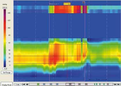 Dyssynergní defekace typ I. Paradoxní kontrakce análního svěrače při simulované defekaci