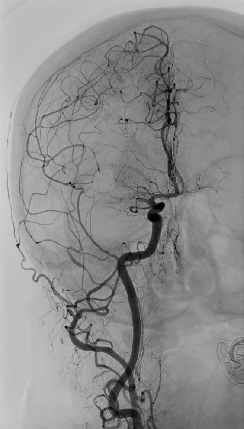 Angiografie provedená na počátku mechanické trombektomie u stejného pacienta