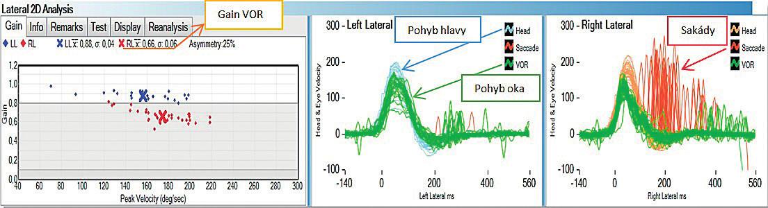 Grafické znázornění výsledků testu u zdravého jedince. Rychlost pohybu oka (zelená barva) koreluje s rychlostí pohybu hlavy (modrá a oranžová barva). Diagram zobrazuje průměrnou hodnotu gainu VOR při testování jednotlivých polokruhovitých kanálků. Popis polokruhovitých kanálků vnitřního ucha: RL (pravý laterální), LL (levý laterální), RA (pravý přední), LA (levý přední), RP (pravý zadní), LP (levý zadní).