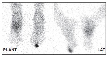 Distribuce značených leukocytů za 24 hodin po aplikaci. Je patrný pokles intenzity akumulace v nártu (CHOAP) a nárůst akumulace v prstu (osteomyelitida).