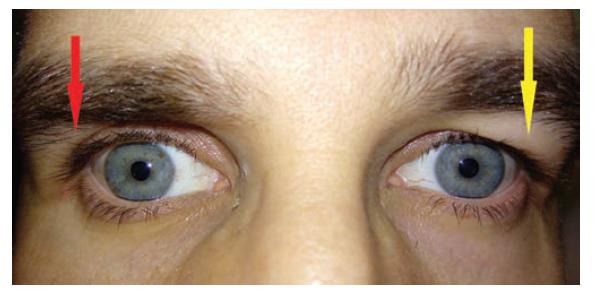 Blefarochalasis levého oka. Na pravém oku lze tušit místo blefarochalasy hlubokou orbitopalpebrální rýhu