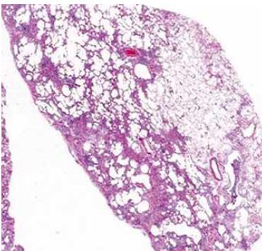 Histopatologický obraz obvyklé intersticiální pneumonie.