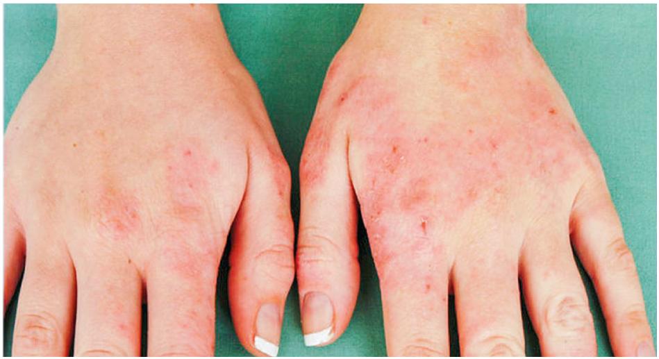 Eczema contactum prof. – parafenylendiamin+++, 4-aminofenol+++, disperzní oranž+++, amonium persulfát+++, thiuram-mix+++, nikl+++, kobalt++, pladium++ – kadeřnice