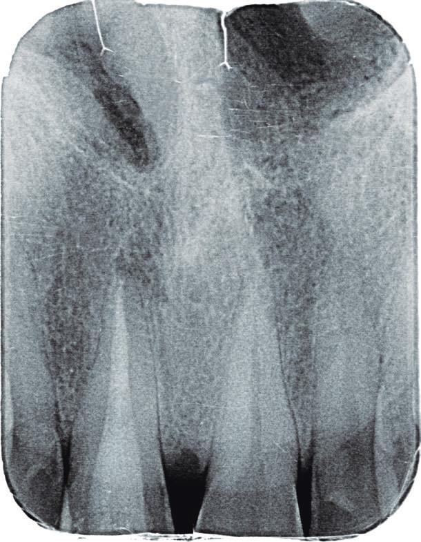 Intraorální rentgenový snímek zubu 11 v apikálním zastavení po ukončeném reendodontickém vyšetření