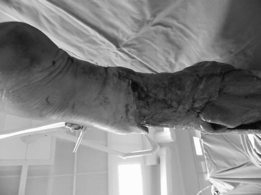 Obr. 5b: Stav po rozsáhlé nekrektomii a transferu <i>m latissimus dorsi</i>