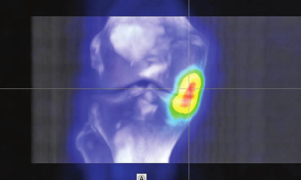 3D fúze SPECT/CT obrazu u pacienta s osteochondrálním defektem mediálního kondylu femuru v pozdějším stádiu a s přestavbovou aktivitou i protilehlého konce tibie.