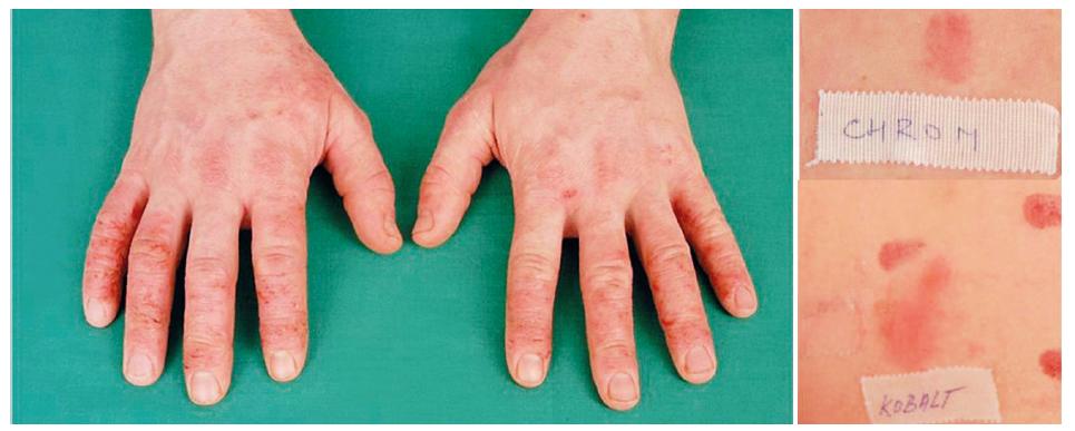 Eczema contactum prof. – atopická báze – chrom++ (cement), kobalt++, thioram mix++ (pryž) – zedník