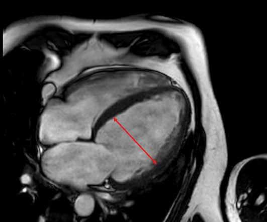 Dilatační kardiomyopatie při zobrazení na magnetické rezonanci s dilatací levé komory srdeční s end-diastolickým rozměrem 68 mm. Zdroj: Archiv Kliniky zobrazovacích metod FN u sv. Anny v Brně.
