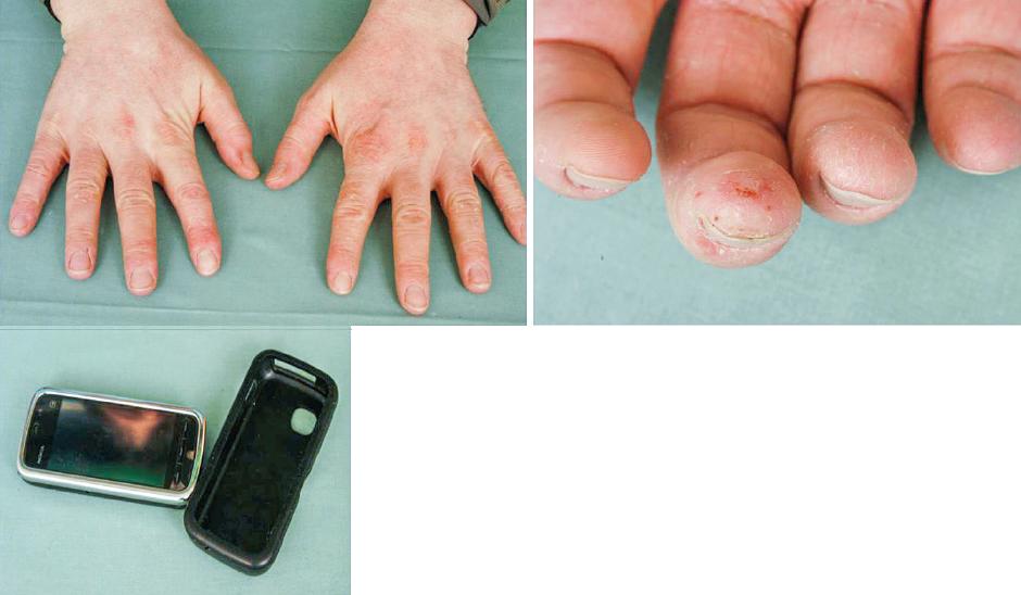 Eczema contactum et atopicum – IPPD+++ (obal mobilního telefonu), disperzní oranž 3++, disperzní oranž 1++, lyral+-++ (kosmetické přípravky) – hodinář
