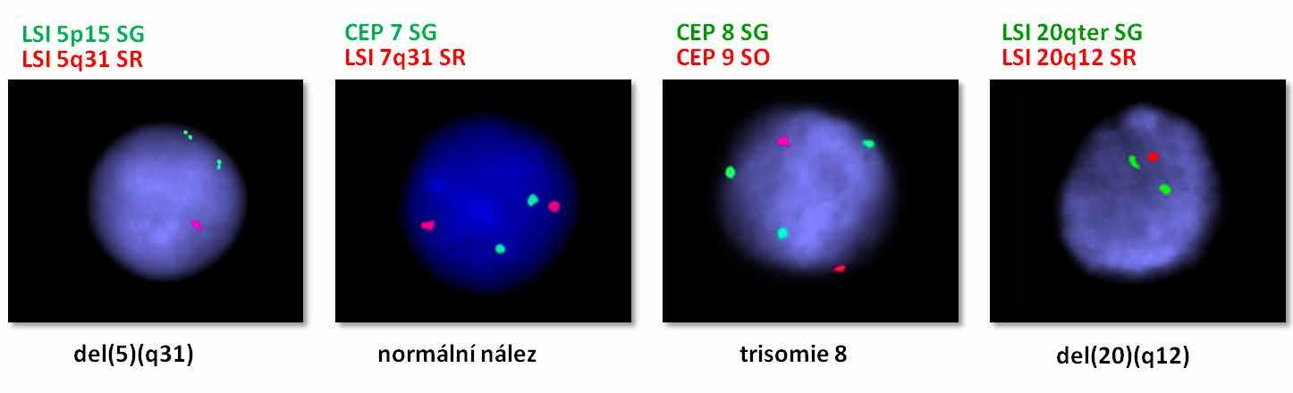 Obr. 2a Vyšetření pacientky s MDS metodou I-FISH se specifickým panelem DNA sond (Abbott) pro detekci 4 nejčastějších a prognosticky nejvýznamnějších chromosomových aberací popisovaných u nemocných s touto diagnózou: delece 5q, monosomie 7, trisomie 8 a delece 20q. Nález potvrdil přítomnost tří aberací – del(5q), trisomie 8 a del(20q).