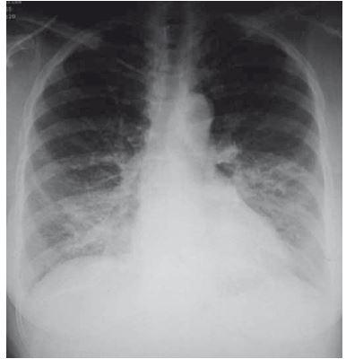 Pneumonie vpravo bazálně.<br> Fig. 2. Right basal pneumonia.