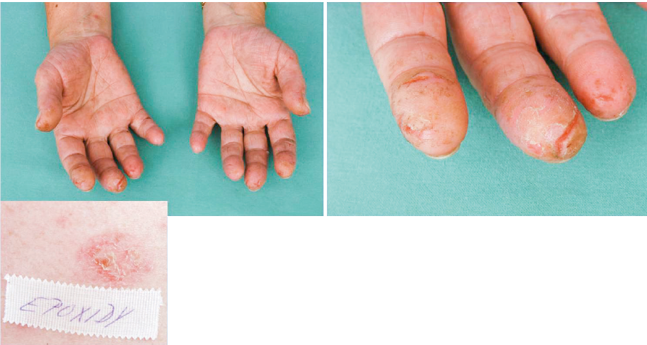 Eczema contactum prof. – epoxidy+++, tužidlo k epoxidům+++ (dietylentriamin) – dělnice (práce na vrtačce)