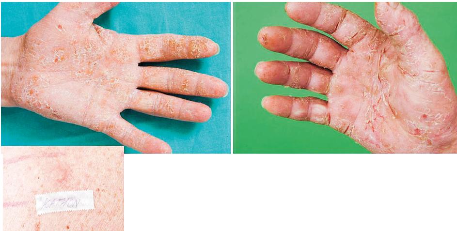 Eczema contactum prof. – KathonCG, izothiazolinové deriváty – atopická báze (chladicí emulze)