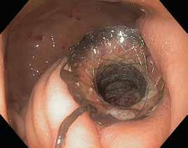 Obr. 17.2. Endoskopická pseudocystogastrostomie – do žaludku ční potažený metalický stent