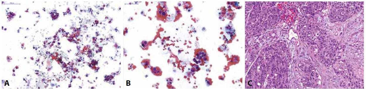 Pacient s makroskopickou hematurií při prvozáchytu tumoru močového měchýře na CT.<br> (A,B) Spontánně vymočená moč; na krevnatém pozadí zastiženy normální urotelie z různých vrstev sliznice a atypické suspektní urotelie s posunutým nukleocytoplazmovým poměrem ve prospěch jádra, hyperchomázií, nepravidelnostmi jaderné membrány a granulárním chromatinem; dle Pařížské klasifikace kategorie: HGUC<br> (C) Definitivní histologický materiál u pacienta získaný TURT s odstupem měsíce po pozitivní močové cytologii; zastižen je invazivně rostoucí špatně diferencovaný uroteliální karcinom, dle WHO 1973 grade 3, dle WHO 2016 high-grade infiltrující uroteliální karcinom.