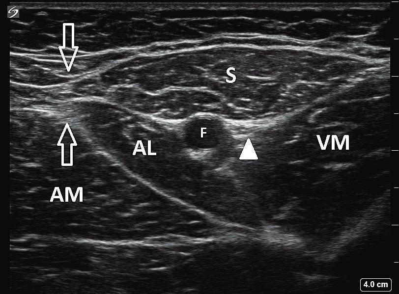 Ultrazvukový obraz stehna LDK v úrovni apexu femorálního trojúhelníku: S – m. sartorius, AL – m. adductor longus, AM – m. adductor magnus, VM – m. vastus medialis, F – femorální tepna, prázdné šipky ukazují překrytí mediálních okrajů m. sartorius a m. adductor longus – apex FT, bílý trojúhelník označuje interfasciální prostor, ve kterém je nervus saphenus