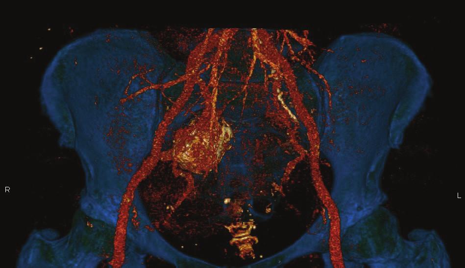 CT AG − Aneuryzma na vnitřní pánevní tepně vpravo<br> Fig. 1: CT AG – Right hypogastric artery aneurysm