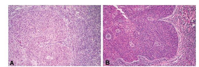 A) Invazivní nerohovějící spinocelulární karcinom patrové mandle v peroperační biopsii zhotovené zmrazovací technikou. V rámci pátrání po primárním nádorovém ložisku u nemocného s metastázami v krčních lymfatických uzlinách byla provedena stejnostranná tonzilektomie a celá mandle byla zaslána k peroperačnímu vyšetření (HE, 200x). (B) Tentýž invazivní nerohovějící spinocelulární karcinom patrové mandle v definitivním preparátu (HE, 200x)