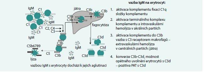 Mechanizmy IgM zprostředkované hemolýzy