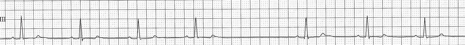 Pauza při dysfunkci SA uzlu (SA blokáda 2. stupně). Po čtrtém QRS komplexu následuje pauza, v rámci níž není přítomna nepřevedená P vlna, a v tomto případě se jedná o pauzu na pokladě dysfunkce SA uzlu.