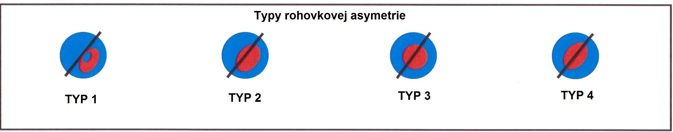 Types of corneal assymetry used for Keraring calculations