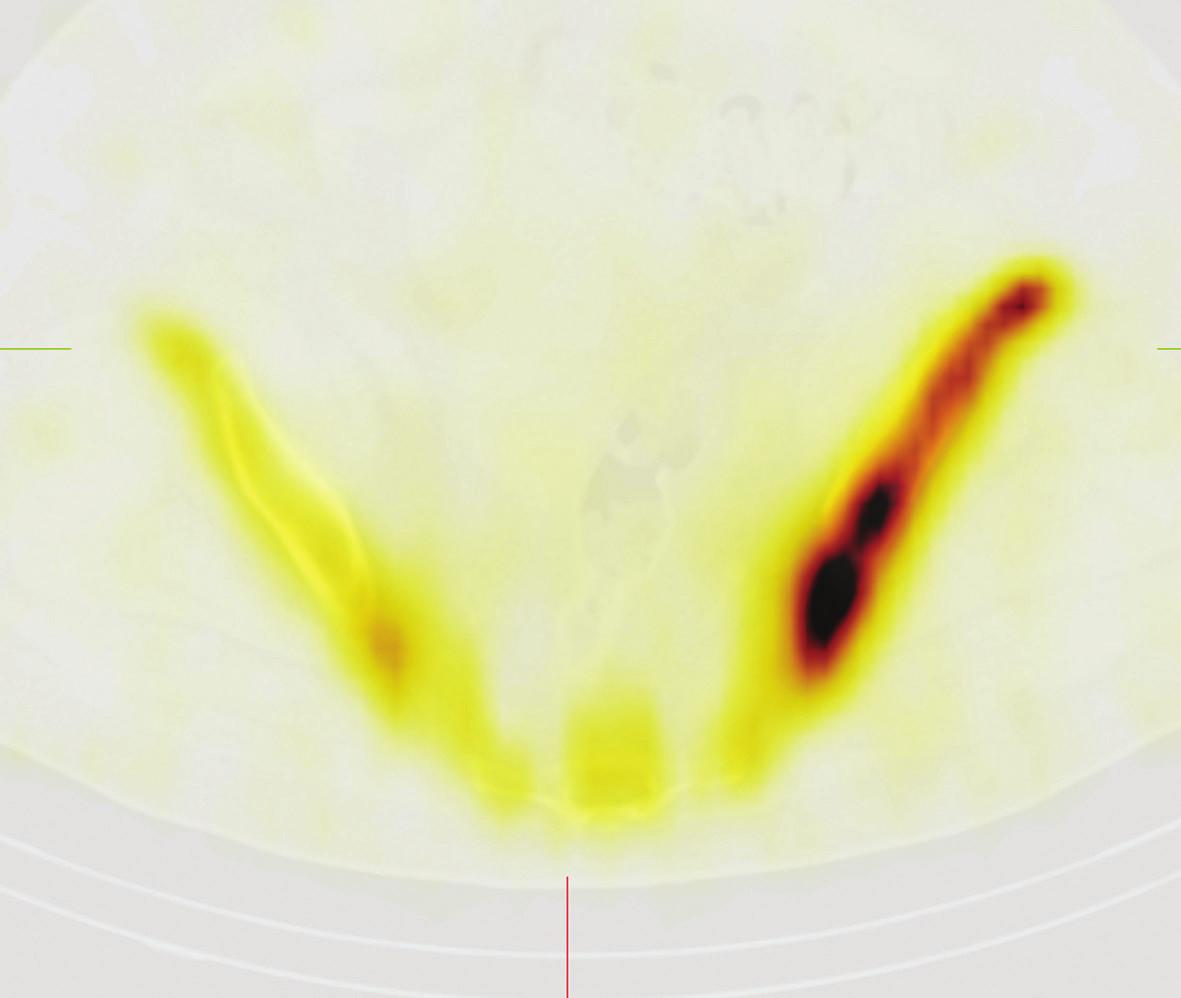 Obr. 3Ba Scintigrafie skeletu, SPECT/CT tomografické obrazy pánve. Transversální řez vedený úrovní křížové kosti. Je patrná výrazně zvýšená akumulace v lopatě kosti kyčelní vlevo.