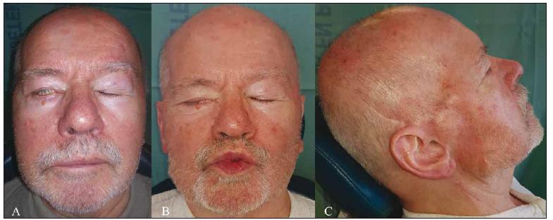(A) Lagoftalmus 2 měsíce po operaci. (B) Mimika obličeje 7 měsíců po výkonu, již bez lagoftalmu. (C) Operovaná krajina 7 měsíců po výkonu.<br> Fig. 2. (A) Lagophthalmos 2 months after surgery. (B) Function of mimic muscles 7 months after surgery, the lagophthalmos already resolved. (C) Surgical area 7 months after the procedure.
