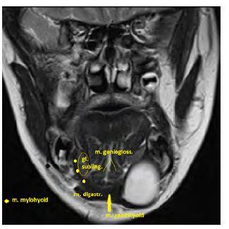 Obrázek 3 Dermoid vlevo submandibulárně (bílá kulovitá rezistence)