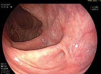 Pahýl rekta během léčby ustekinumabem.<br> Fig. 3. The rectal stump during treatment with ustekinumab.