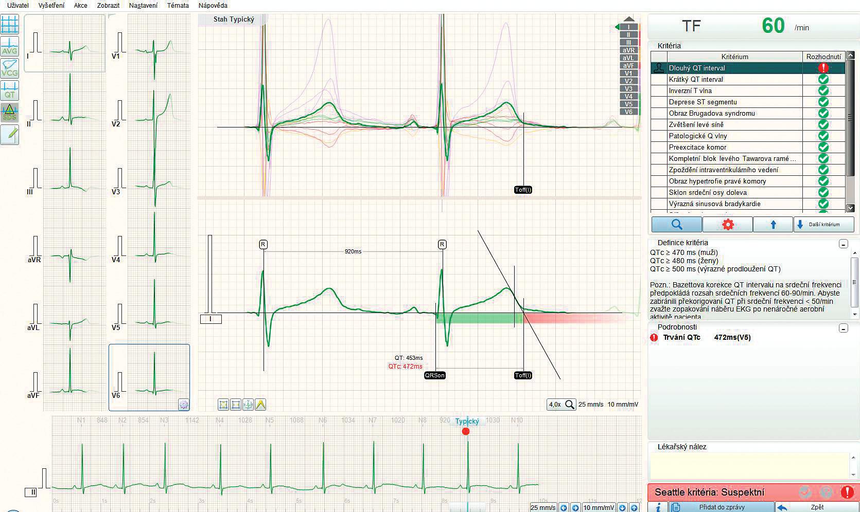 Interaktivní plocha softwarového Sudden Death Screening (SDS) modulu fy BTL pro odhalení patologických nálezů na 12-svodovém EKG sportovců ve věku 14–35 let používající mezinárodní interpretační kritéria. EKG je importováno do modulu, který je součástí počítačového EKG softwaru (BTL Cardiopoint, BTL zdravotnická technika a.s., Praha, Česká republika). V pravé části obrazovky je seznam EKG patologií, které modul vyhodnocuje a vyhodnocení může být kontrolováno operátorem. Na zobrazené EKG křivce je patrné interaktivní rozměření QT intervalu s výpočtem korigovaného QT (QTc). Podobně je možno kontrolovat vyhodnocení dalších kritérií patologie. Modul hodnotí jednotlivá kritéria patologie třemi stupni: negativní, hraniční nebo diskutabilní a pozitivní.