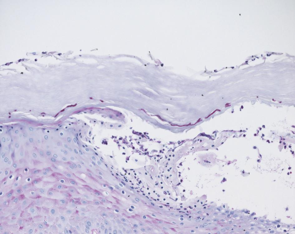 Obr. 2b. PAS, zvětšeno 20krát<br> Krátká neseptovaná mykotická vlákna včetně blastospor v rohové vrstvě.