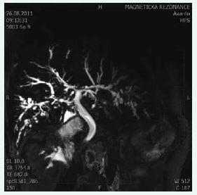 """Cholangiogram u pacienta s PSC. Typické změny zachycené při MRCP: vícečetné segmentální striktury a dilatace žlučového stromu s charakteristickým """"korálkováním"""""""