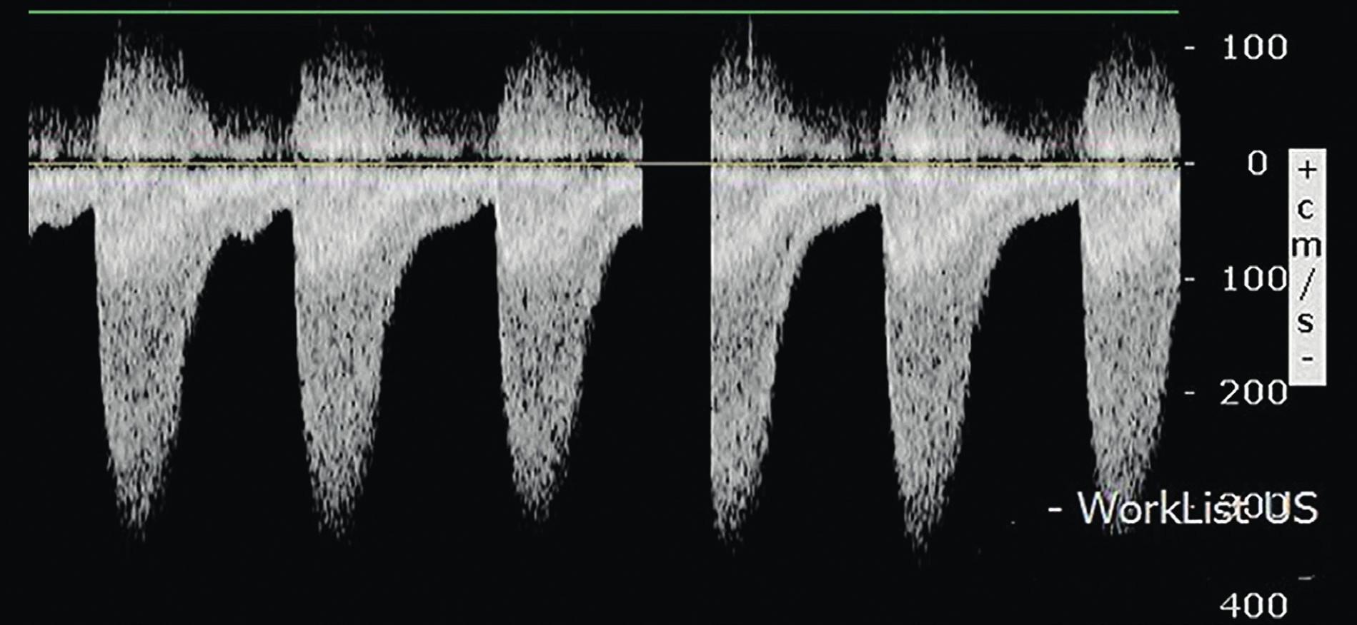 """Typický pilovitý tok v místě koarktace aorty při pulzním dopplerovském vyšetření s naznačeným """"diastolickým tailem"""" (archiv autorů).<br> Fig. 4. Typical sawtooth pattern with continuous flow wave Doppler interrogation in coarctation of the aorta with """"diastolic tail""""(authors archive)."""