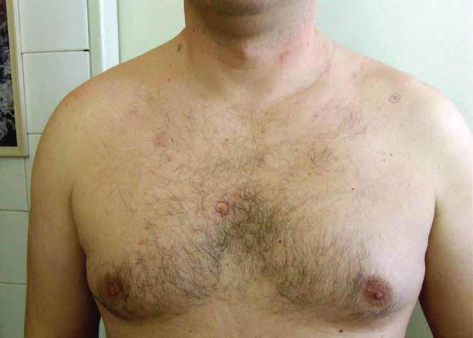 Pohľad na hrudník a prednú časť tela s viacpočetnými bazocelulárnymi karcinómami kože.