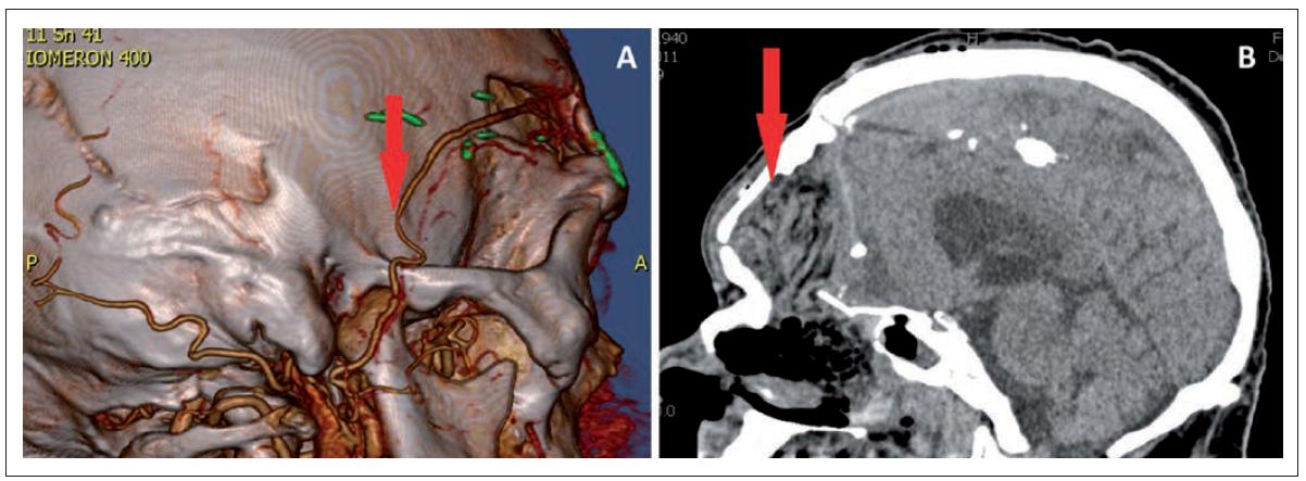 A – CTA, the arrow shows the arterial anastomosis, B – CT scan after 2 days from the operation, the arrow shows the flap.<br> Obr. 2. A – CTA, šipka ukazuje arteriální anastomózu, B – CT po 2 dnech od operace, šipka ukazuje lalok.