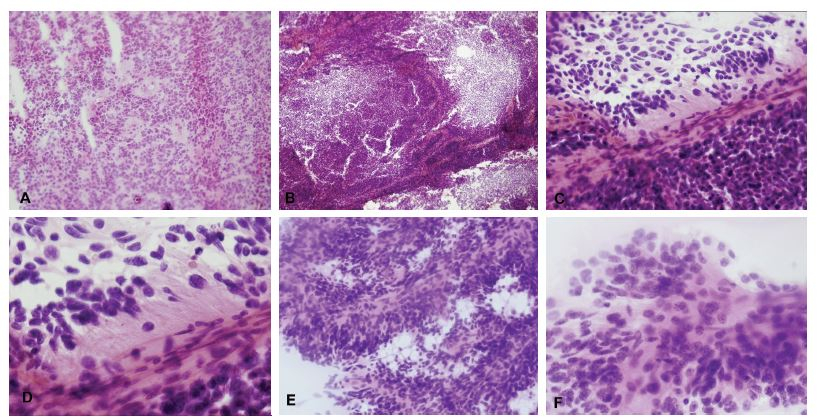 """(A-D) Tumor IV. komory u 31-ročného muža. V zmrazenom reze bol zachytený výrazne celulárny tumor, ložiskovo s perivaskulárnymi pseudorozetami (A). V nátere sa nádorové bunky """"držia"""" okolo ciev (B). Perivaskulárne pseudorozety – nádorové bunky sú k cievam prichytené gliálnymi výbežkami, jadrá sú zoradené periférne (C, D). Pre vysokú celularitu a pomerne výrazné jadrové atypie bol nádor peroperačne nesprávne diagnostikovaný ako medulloblastóm. Definitívna diagnóza: anaplastický ependymóm, grade III. (E, F) V inom prípade prítomnosť typických buniek s okrúhlymi jadrami a """"salt and pepper"""" chromatínom umožnila správnu peroperačnú diagnózu ependymómu."""