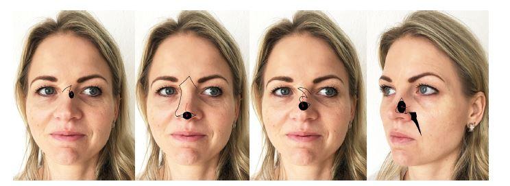 Možnosti uzávěru menších defektů kůže nosu: A) místní transpoziční praporový lalok, B) sesun kůže hřbetu nosu pro rekonstrukci defektů špičky nosu, C) bilobed flap, D) posuvný tvářový lalok.