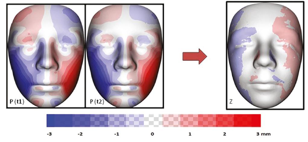 Vizualizace znázorňující průměrnou individuální asymetrii všech sledovaných pacientů s OAVS v čase t1 a t2 (P); barevná mapa znázorňující změnu (v mm) průměrné individuální asymetrie mezi t1 a t2 (Z)<br> Fig. 7 Visualization showing the average individual asymmetry of all OAVS patients monitored at time t1 and t2 (P); a color map showing the change (in mm) of the average individual asymmetry between t1 and t2 (Z)
