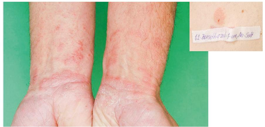 Eczema contactum prof. – atopická báze – benzizothiazolinon – obráběč kovů a záměčník