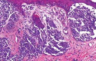 Růžová část – vertikální růstová fáze melanomu (HE, 200x)