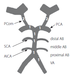 Basilar Artery on Computed Tomography Angiography (BATMAN) skóre, které zahrnuje důležitost daného segmentu. Podle Alemseged et al [1]. AICA – arteria cerebelli inferior anterior; AB – arteria basilaris (3 b); PCA – arteria cerebri posterior (2 b); PCom – arteria communicans posterior (4 b); SCA – arteria cerebelli superior; VA – arteria vertebralis (1 b)<br> Fig. 1. Basilar Artery on Computed Tomography Angiography (BATMAN) score that includes the importance of the segment. According to Alemseged et al. [1]. AICA – anterior inferior cerebellar artery; AB – basilar artery (3 p); PCA – posterior cerebral artery (2 p); PCom – posterior communicating artery (4 p); SCA – superior cerebellar artery; VA – vertebral artery (1 p)