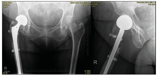 76letá žena s tříštivou zlomeninou trochanterického masivu, kontrolní RTG po implantaci CKP s pojistnou cerkláž