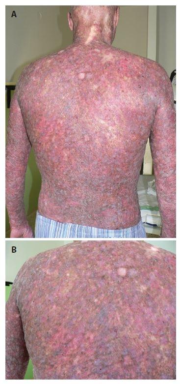 a. Klinický obraz poikilodermie na zádech pacienta<br> Obr. 1b. Detail kožního postižení levé lopatky Přítomná deskvamace, poikilodermie (síťovitá hyper- a hypopigmentace, teleangiektázie, atrofie kůže).