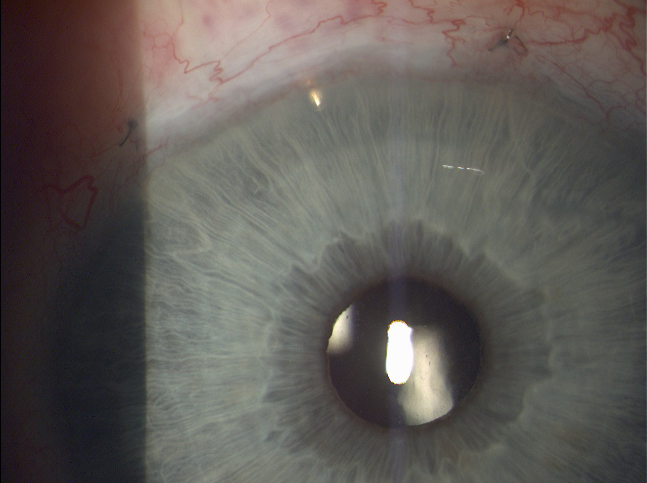 EX-PRESS implant located in the upper outer quadrant of the right eye (Source: own processing, year: 2015)