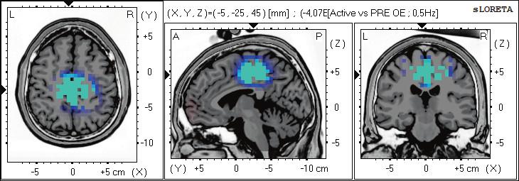Statistické ne-parametrické mapy sLORETA diference v beta-2 pásmu při porovnání aktivního provedení pohybu oproti klidovému záznamu při otevřených očích. Modrá barva znamená snížení zdrojové aktivity v gyrus cinguli BAs 31, 24, precentrálním gyru BA 6 a precuneu BAs 7,5. Anatomické řezy Talairachova obrazu mají šedou barvu (L – vlevo, R – vpravo).